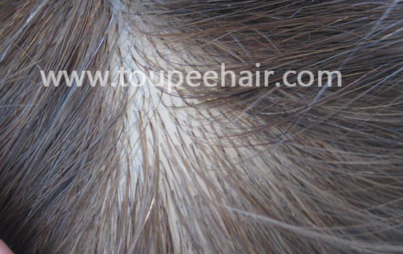 Skin Poly Injection Hair Systems All Skin Poly Injection